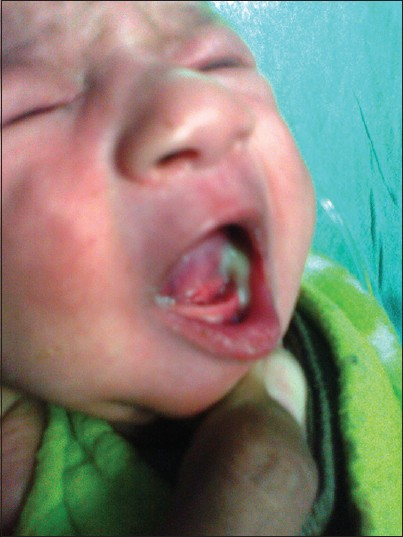 Figure 2: Spontaneous intraoral drainage of pus