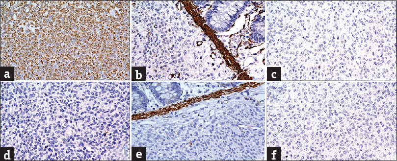 Figure 2: (a) Tumor cells showing diffuse vimentin positivity (immunohistochemistry, ×400), (b-f) tumor cells negative for smooth muscle actin (b), S-100 (c), CD117 (d), desmin (e), CD34 (f) (immunohistochemistry, ×400)