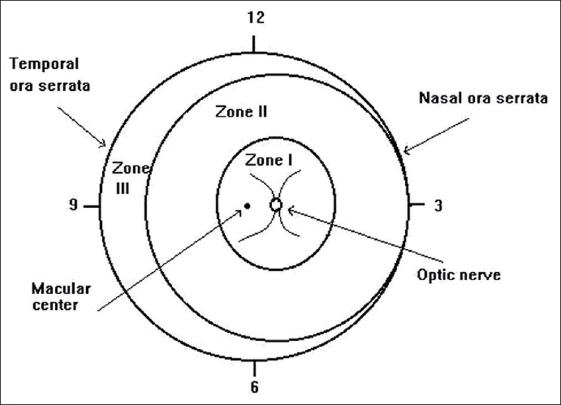 Figure 1: Schematic representation of different zones used in classifying retinopathy of prematurity