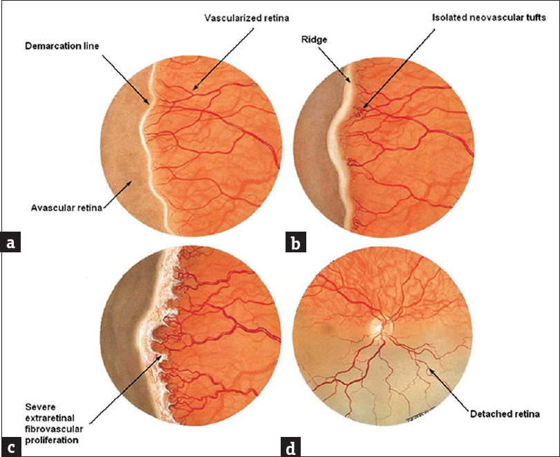 Figure 2: Schematic representation of different stages in retinopathy of prematurity: (a) Stage 1: retinopathy of prematurity, (b) Stage 2: retinopathy of prematurity, (c) Stage 3: retinopathy of prematurity, (d) Stage 4: retinopathy of prematurity. (From: Kanski JJ. Clinical ophthalmology: A systematic approach. 6th ed. Edinburgh: Butterworth–Heinemann/Elsevier)