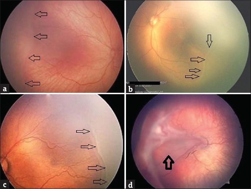 Figure 3: Fundus images from RetCam Fundus Camera showing different stages of retinopathy of prematurity: (a) Stage 1: retinopathy of prematurity (the black arrows indicate demarcation line between posterior vascularized retina and abnormal anterior avascular retina), (b) Stage 2: retinopathy of prematurity (black arrows indicate the ridge), (c) Stage 3: retinopathy of prematurity (black arrows indicate the ridge with extraretinal fibrovascular proliferation), (d) Stage 4: retinopathy of prematurity with partial retinal detachment involving the macula (image source: Figures a, c and d from the American Academy of Ophthalmology)