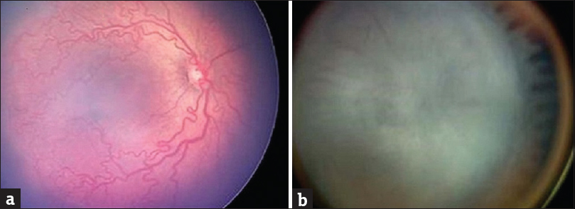 "Figure 4: (a) Fundus image showing venous dilation and arterial tortuosity of the posterior pole vessels, indicating ""Plus disease."" (b) Stage 5: retinopathy of prematurity. Total retinal detachment (image source: American Academy of Ophthalmology)"