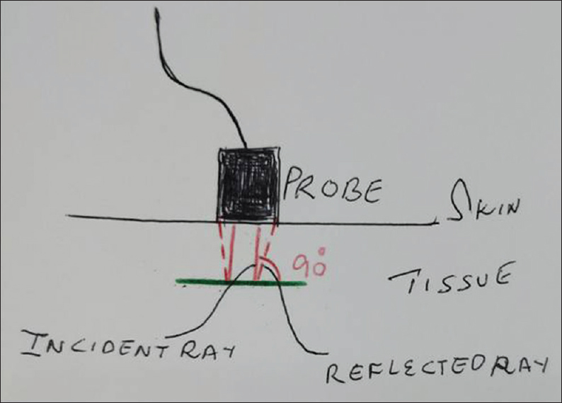 Figure 11: The incident ray and the reflected ray to demonstrate the angle of insonation