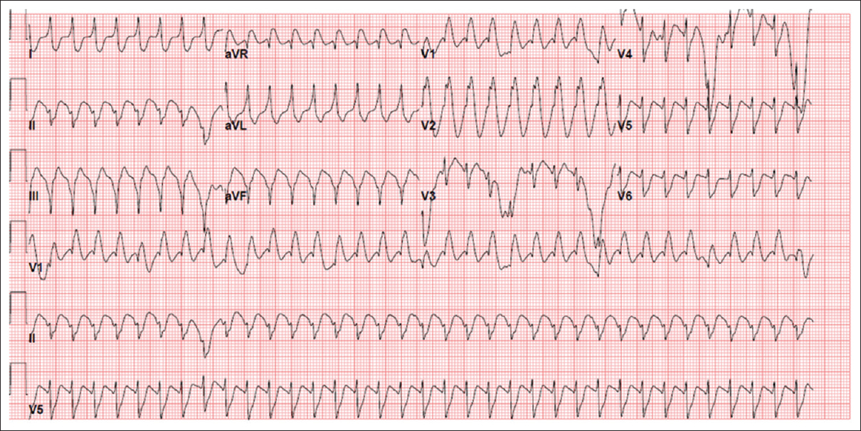 Figure 1: Electrocardiogram shows ventricular rate of 215 BPM, wide QRS tachycardia with occasional premature ventricular complexes, left axis deviation, and right bundle branch block